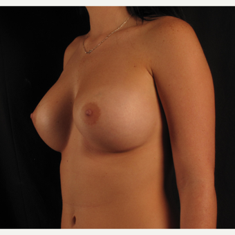 18-24 year old woman treated with Breast Augmentation after 3537361