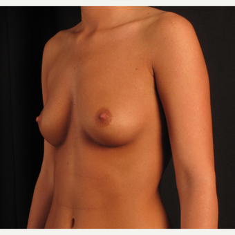 18-24 year old woman treated with Breast Augmentation before 3537361