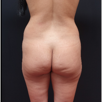 25-34 year old woman treated with Liposuction before 3267112
