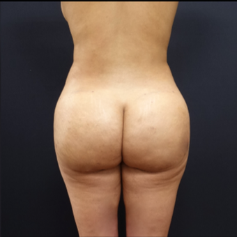 25-34 year old woman treated with Liposuction after 3267112