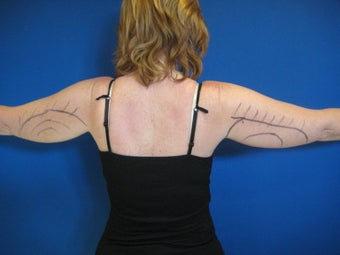 Laser Liposuction - Upper Arms