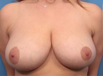 40 year old woman treated with Breast Reduction before 3031292