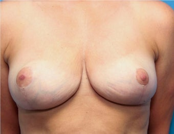 40 year old woman treated with Breast Reduction after 3031292