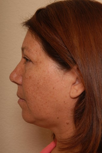 Liposuction of the Neck before 252805