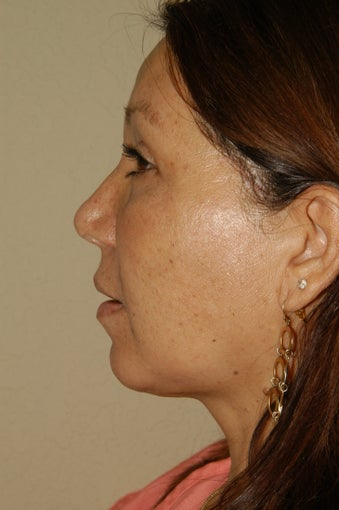 Liposuction of the Neck after 252805