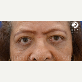 65-74 year old woman treated with Eye Bags Treatment, lower and upper Eyelid Lift after 1648383
