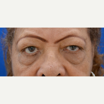 65-74 year old woman treated with Eye Bags Treatment, lower and upper Eyelid Lift before 1648383