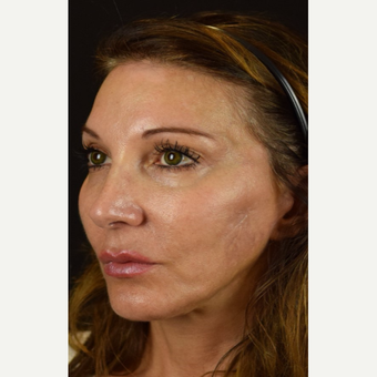 Facial Scars Treated with Microneedling after 3005349