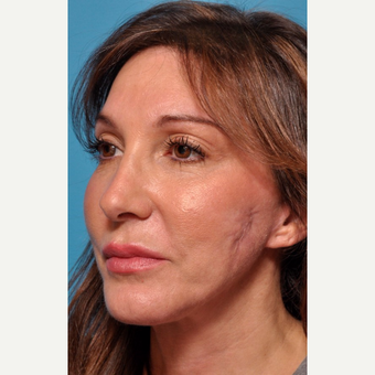 Facial Scars Treated with Microneedling before 3005349