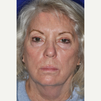 55-64 year old woman treated with Facelift before 3848958