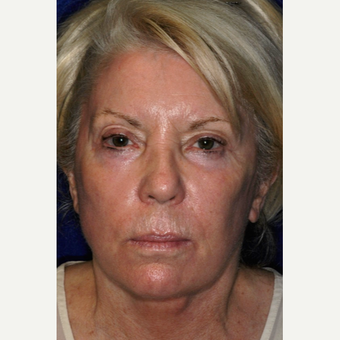 55-64 year old woman treated with Facelift after 3848958