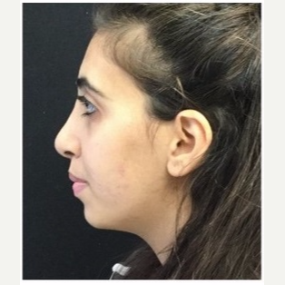 18-24 year old woman treated with Rhinoplasty after 3047018