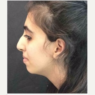 18-24 year old woman treated with Rhinoplasty before 3047018