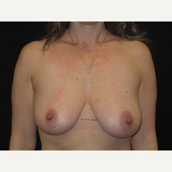 35-44 year old woman treated with Breast Lift with Implants before 1606824