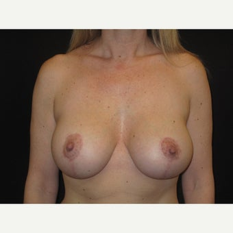 35-44 year old woman treated with Breast Lift with Implants after 1606824