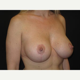 35-44 year old woman treated with Breast Lift with Implants 1606824