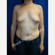 35-44 year old woman treated with Breast Lift with Implants before 3577905