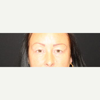45-54 year old woman treated with Eyelid Surgery before 3786459