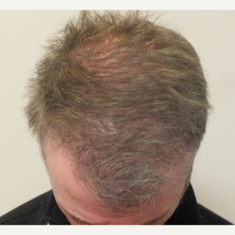 45-54 year old man treated with ARTAS Robotic Hair Transplant after 2831058
