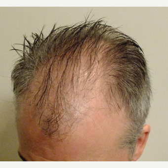 45-54 year old man treated with ARTAS Robotic Hair Transplant before 2831058