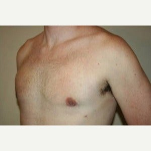 35-44 year old man treated with Male Breast Reduction 1803236