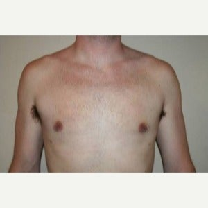 35-44 year old man treated with Male Breast Reduction after 1803236