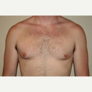 35-44 year old man treated with Male Breast Reduction before 1803236