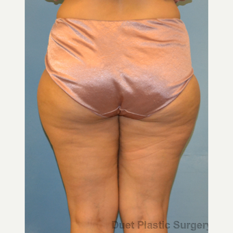 40 year old woman treated with Liposuction of outer thighs before 3094354