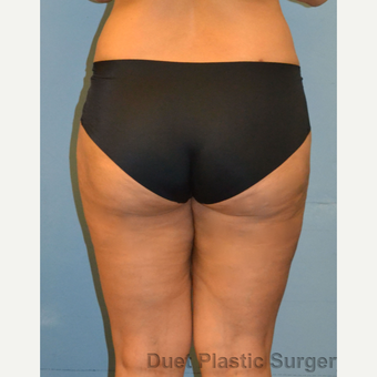 40 year old woman treated with Liposuction of outer thighs after 3094354