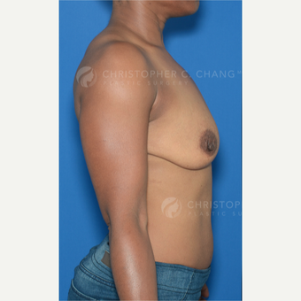 45-54 year old woman treated with Breast Lift with Implants before 3628972