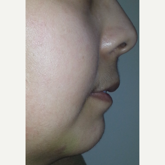 18-24 year old woman treated with Chin Implant after 3554854