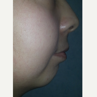 18-24 year old woman treated with Chin Implant before 3554854