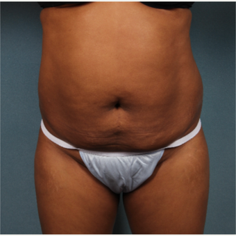 45-54 year old woman treated with Tummy Tuck before 3253769