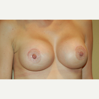 35-44 year old woman treated with Breast Lift with Implants after 3192527