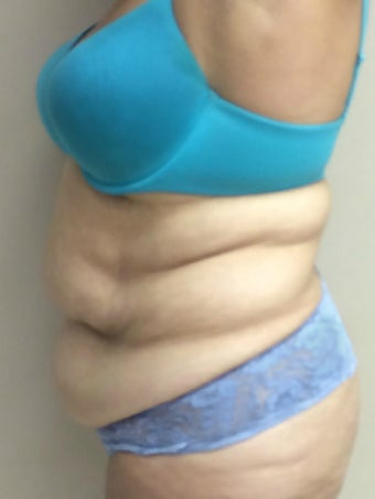 45-54 year old woman treated with a Tummy Tuck. 1866778