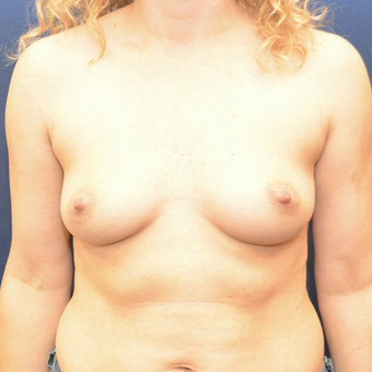 25-34 year old woman treated with Breast Augmentation before 3726794