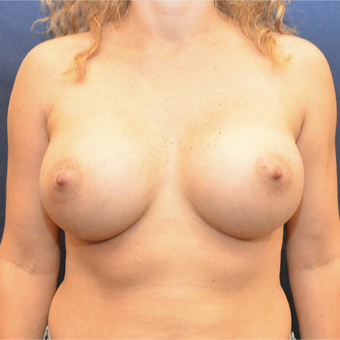 25-34 year old woman treated with Breast Augmentation after 3726794