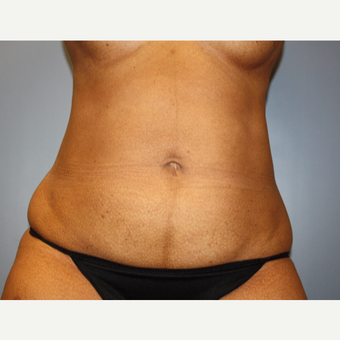 45-54 year old woman treated with Liposuction after 3683145