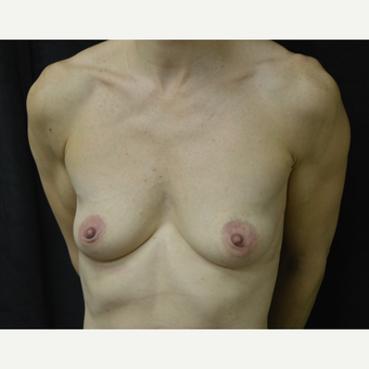 35-44 year old woman treated with Breast Implants before 3418224