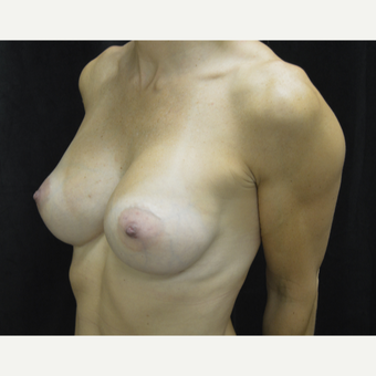 35-44 year old woman treated with Breast Implants after 3418224