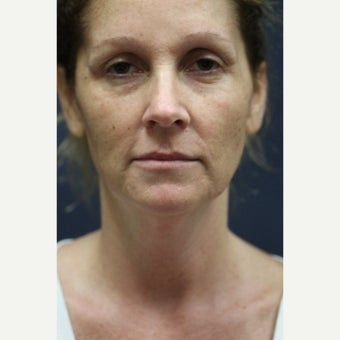 44 year old woman treated with Laser Resurfacing before 1555553