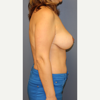 45-54 year old woman treated with Breast Lift after 3452837