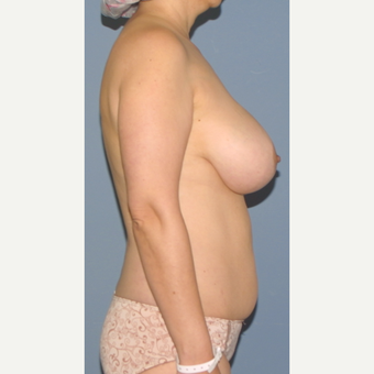 45-54 year old woman treated with Breast Lift before 3452837