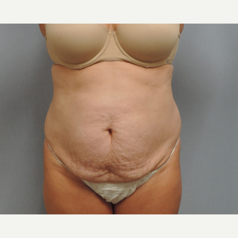 45-54 year old woman treated with Tummy Tuck before 3489715