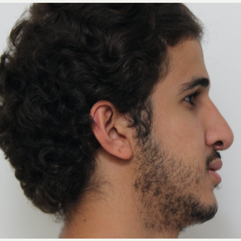 18-24 year old man treated with Revision Rhinoplasty before 3584023
