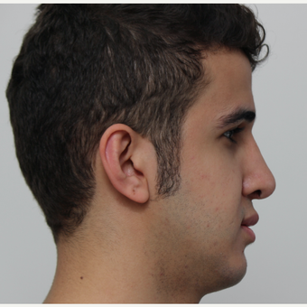 18-24 year old man treated with Revision Rhinoplasty after 3584023