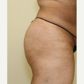 45-54 year old woman treated with Butt Augmentation 1578867