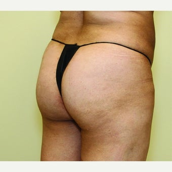 45-54 year old woman treated with Butt Augmentation