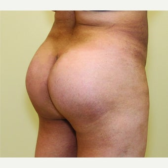 45-54 year old woman treated with Butt Augmentation after 1578867