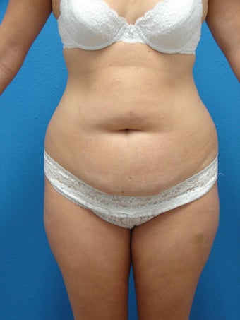 Tummy Tuck before 1413515